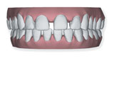 invisalign widely spaced teeth