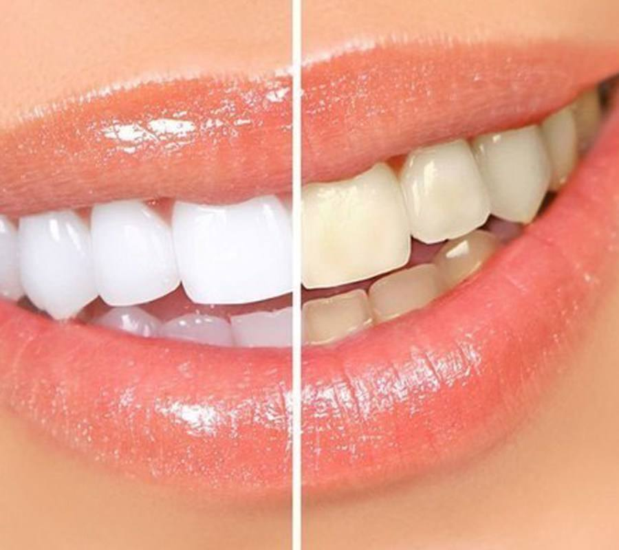 teeth-whitening-camden