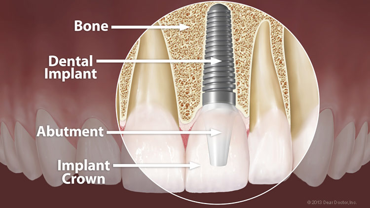 dental implants camden north london