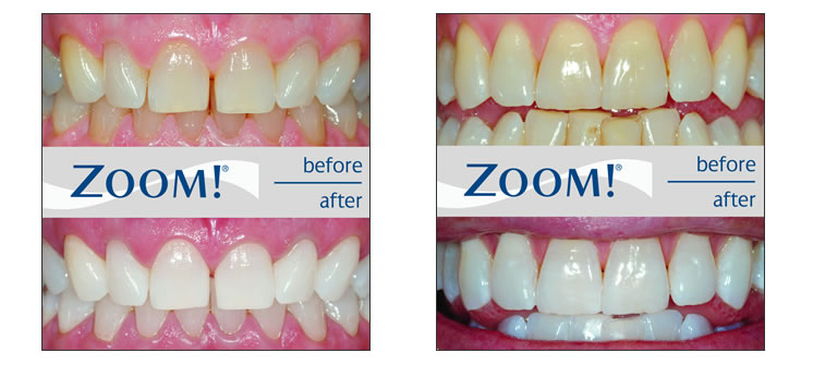 Zoom Teeth Whitening At Home Reviews