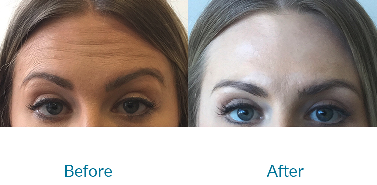 Anti-wrinkle Injection Before and After