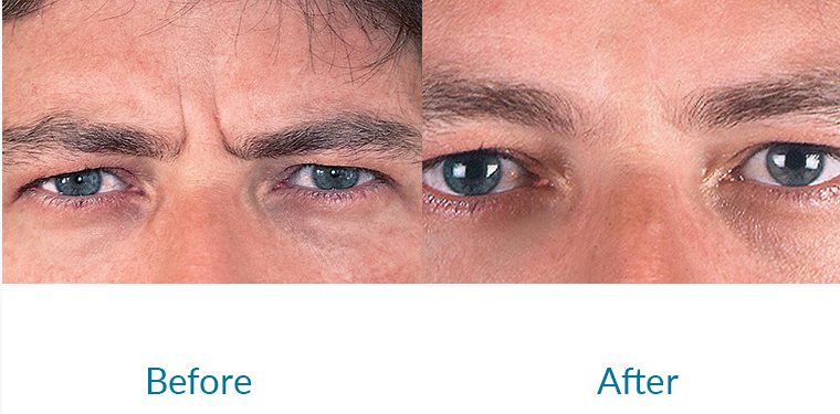 Anti-Wrinle Injections - Before and After of Frown Lines